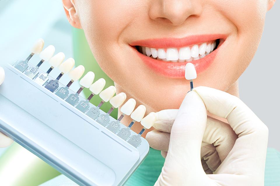 dentiste esthetique dentifree